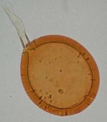 Fig. 1. Vesícula o espora característica de una micorriza (Glomus sp.) observada por microscopio.