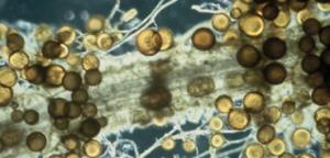 Fig. 3.  Esporas de la micorriza Glomus intraradicis colonizando raíces de tomate. Note los micelios y las vesículas características que forma este microorganismo.